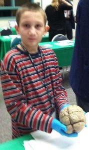 03092014 Brain Day